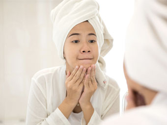 Healthcare Writing Sample: Acne scarring and treatments